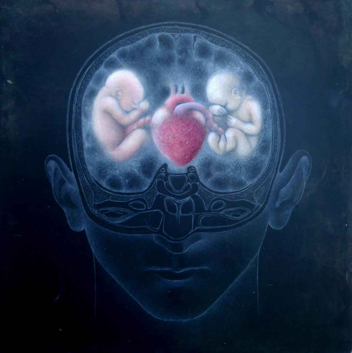 brain-baby-3-email